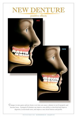 """NEW DENTURE"" - (white) Dental Wall Chart DWC222"