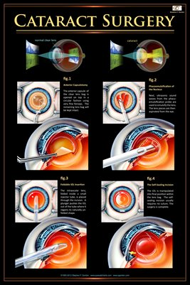 CATARACT SURGERY v.2 Eye Wall Chart #405