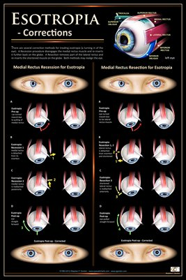 ESOTROPIA CORRECTIONS Eye Wall Chart #707