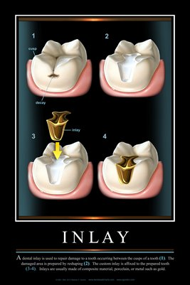 """INLAY"" - (black) Dental Wall Chart DWC801"