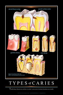 """TYPES of CARIES"" - (black) Dental Wall Chart DWC401"