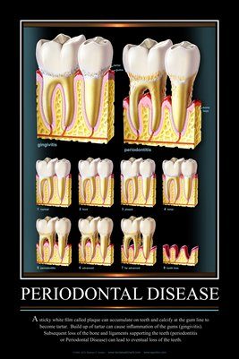 """PERIODONTAL DISEASE"" - (black) Dental Wall Chart DWC601"