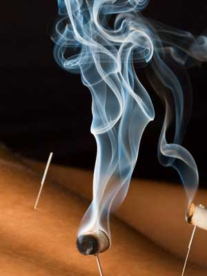 Acupuncture moxibustion