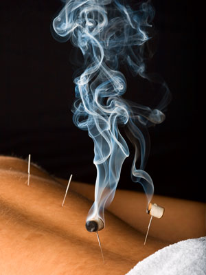 Tracy Schmid offers moxibustion in Park Slope, Brooklyn and Union Square, NYC