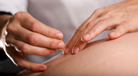 Acupuncture Treatments -