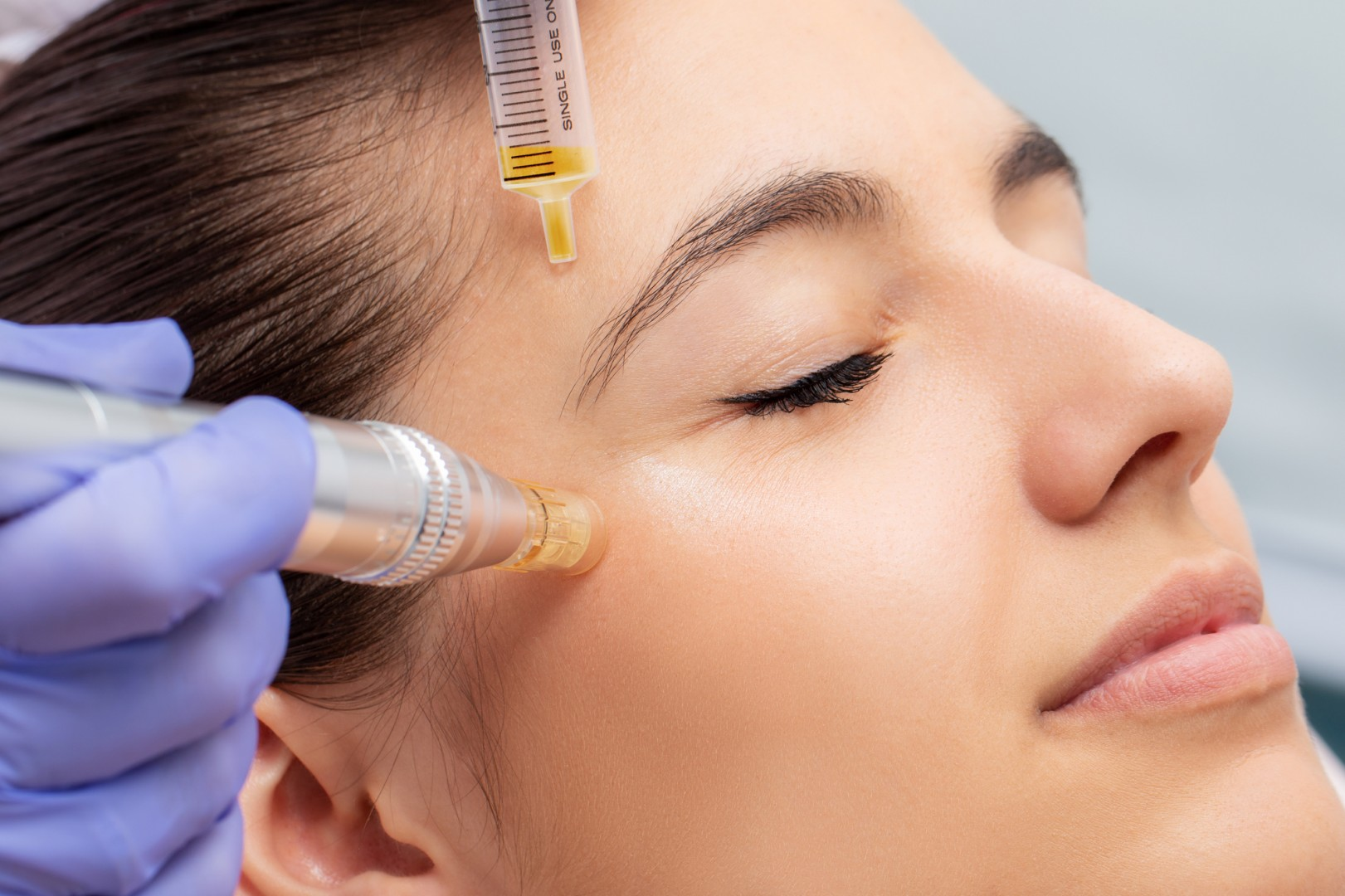 Microneedling - Evolve Acupuncture in Ferndale, MI