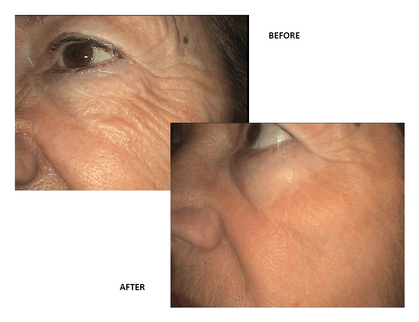 Collagen & MADE facial injections - A Healthier You Wellness Center, Inc. in Fort Lauderdale, Florida