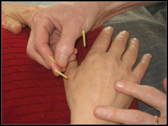 acupuncture pain Mount Kisco fibromyalgia