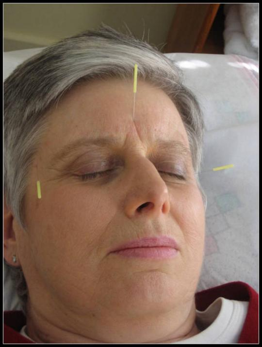 acupuncture for headache Mount Kisco and Bedford