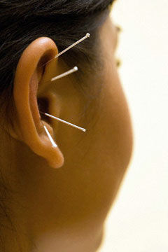Your Ear? Sure, I'll Take It!, Flashpoint Acupuncture, Quakertown, PA in Quakertown, PA