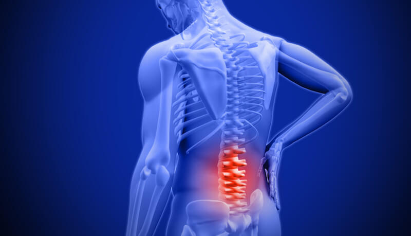 Back Pain - Acupuncture & Integrated Healthcare in Flower Mound, TX