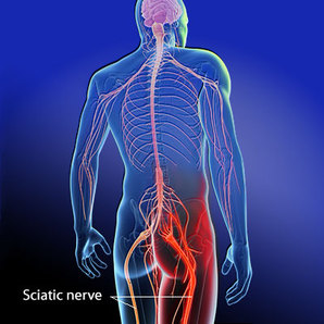 Sciatica - Acupuncture & Integrated Healthcare in Flower Mound, TX