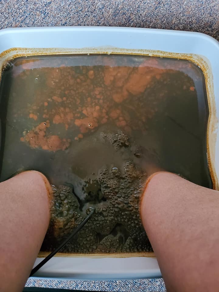Ionic Foot Detox - Hope with Acupuncture, LLC. in 1336 Michigan St., Suite A Waupaca, WI