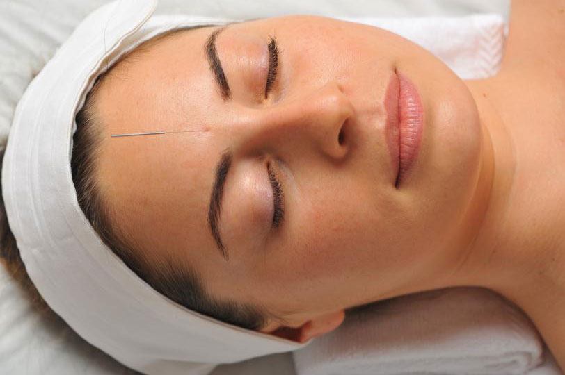 Facial Rejuvenation Acupuncture - Acupuncture Clinic of Viola Huang-Beck, L.Ac. in Santa Rosa, CA