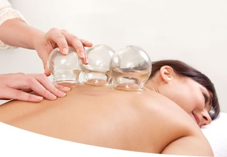 Cupping Therapy, Victoria BC