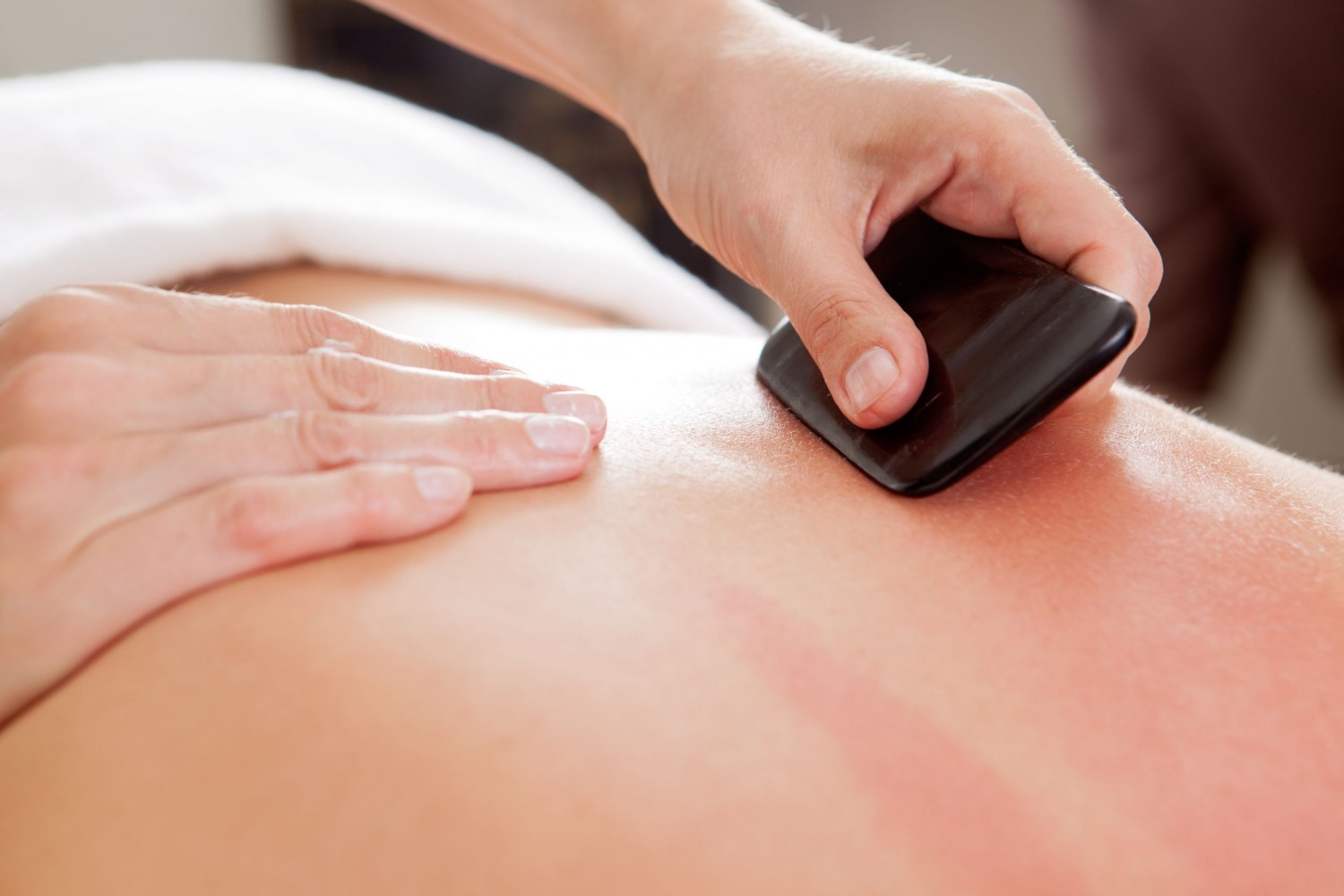 Acupuncture for Back Pain, Victoria BC