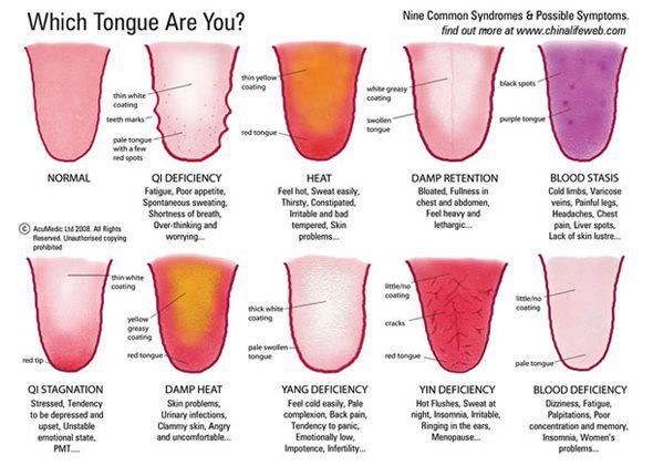 Which Tongue Are You?, Kat Barber R.Ac.   Acupuncture and Chinese Medicine in Ferndale, Michigan in Ferndale, MI