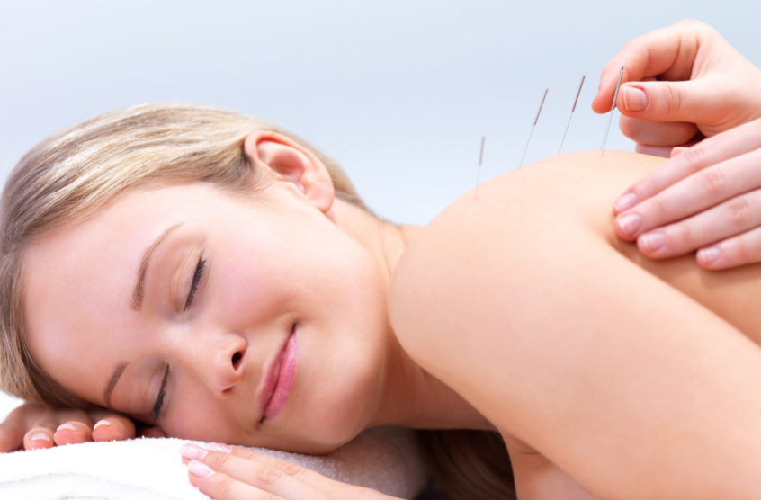 Smiling woman getting Acupuncture