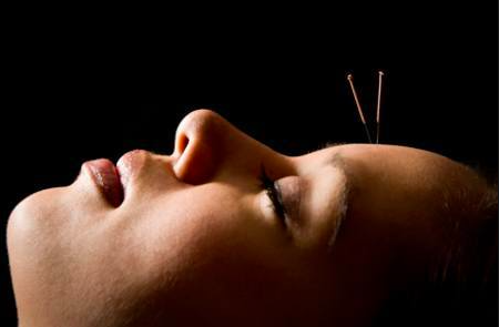 Mend Family Acupuncture offers safe, effective Acupuncture in Los Angeles, CA