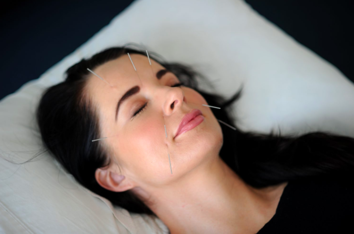 AcuFacials - Mend Family Acupuncture in Los Angeles, CA