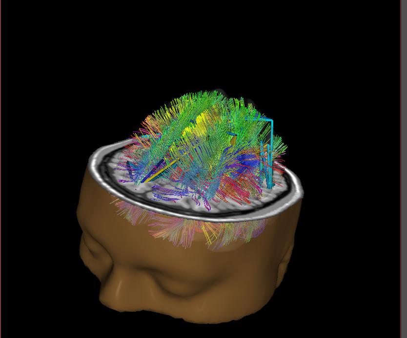 Salvatore Barba, Deborah Houseworth offers Neurofeedback in Seattle, WA