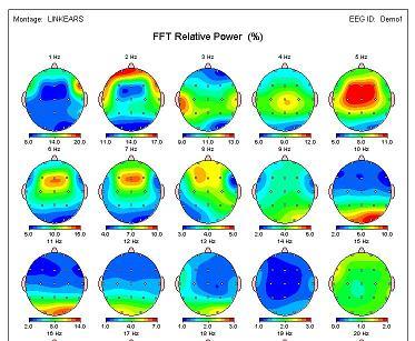 QEEG - CCM and Neurofeedback of Seattle in Seattle, WA