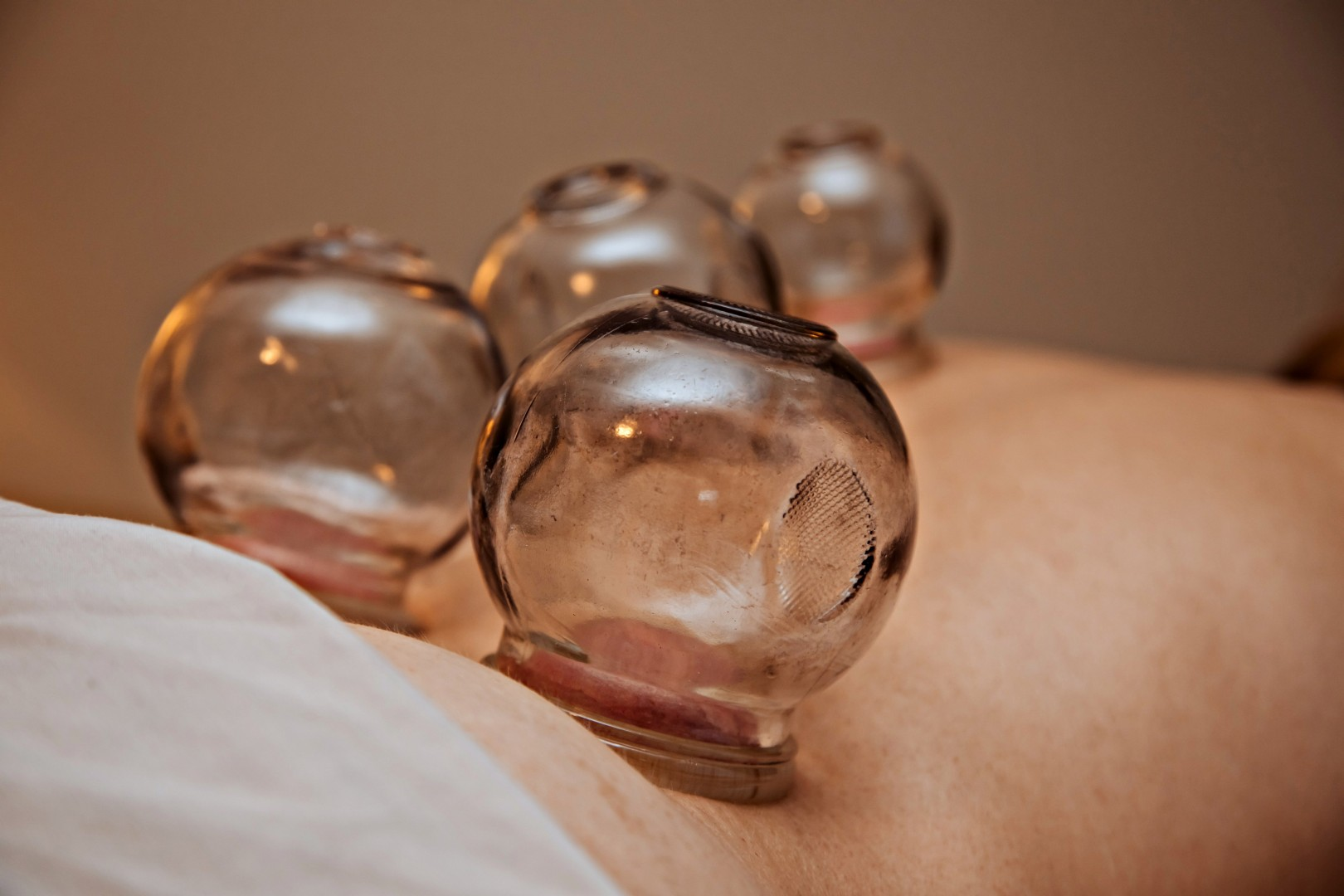 Cupping therapy by acupuncturist Sugandhi Jordan Brown, RAc on Long Lake Nanaimo, BC