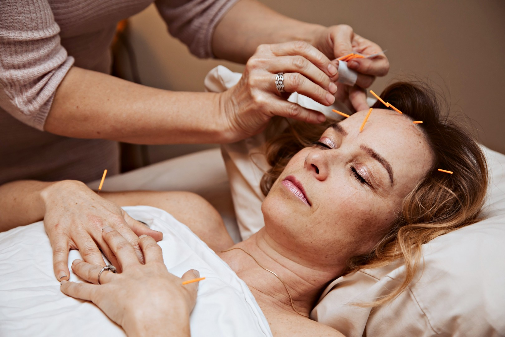 Acupuncture treatment by Carolann Stoll, RAc in Nanaimo, BC