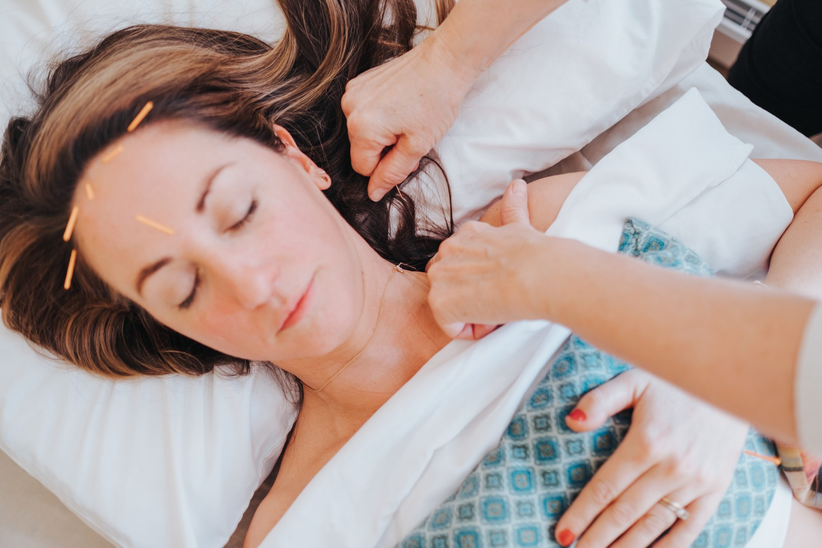 Progressive Healing Institute offers safe, effective Acupuncture in Nanaimo, BC