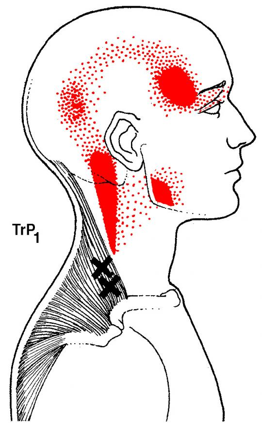 Addressing Headaches Through Muscles, Scarsdale Health & Wellness in Scarsdale NY, scarsdale, westchester, eastchester