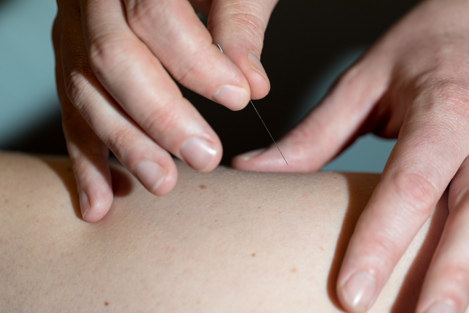 Wildwood Acupuncture offers safe, effective Acupuncture in Portland, OR