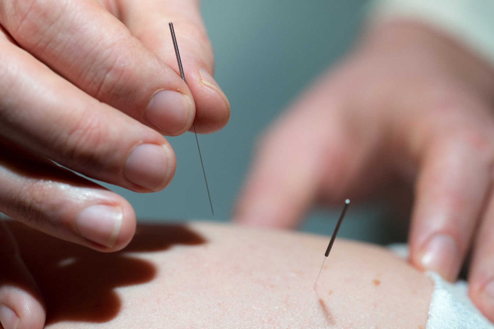 What to Expect - Wildwood Acupuncture in Portland, OR