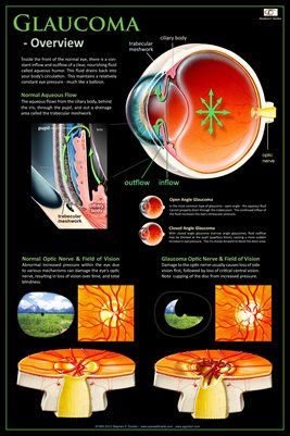 GLAUCOMA - OVERVIEW Eye Wall Chart v.1 #308
