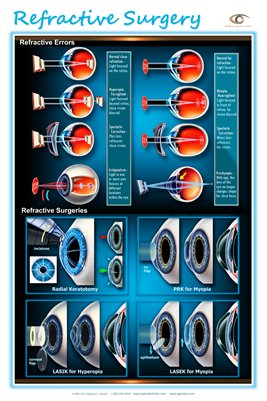 REFRACTIVE SURGERY Wall Chart - Modern Eyecare Series