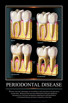 """PERIODONTAL DISEASE"" #2 - (black) Dental Wall Chart DWC603"