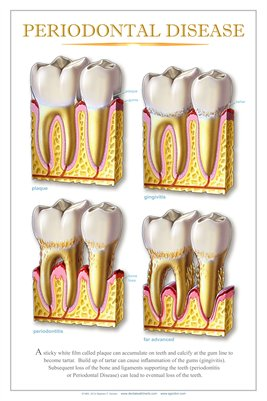 """PERIODONTAL DISEASE"" #2 - (white) Dental Wall Chart DWC604"