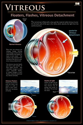 VITREOUS FLOATERS & FLASHES Eye Wall Chart #501