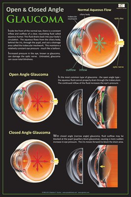 OPEN & CLOSED ANGLE GLAUCOMA Eye Wall Chart #304