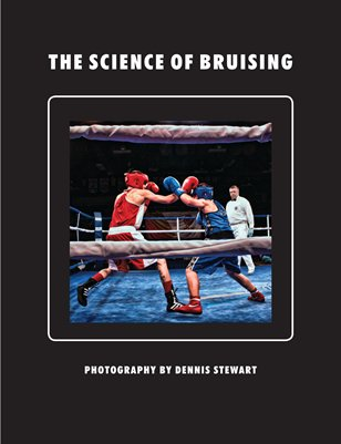 The Science of Bruising