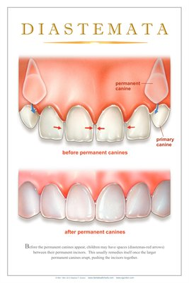 """DIASTEMATA"" - (white) Dental Wall Chart DWC232"