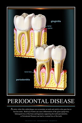 """PERIODONTAL DISEASE"" #3 - (black) Dental Wall Chart DWC605"