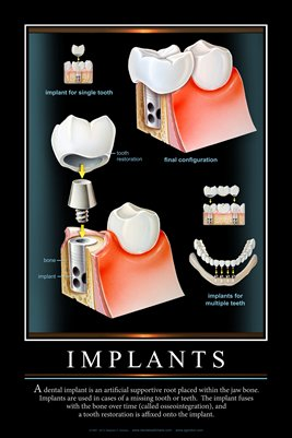 """IMPLANTS"" - (black) Dental Wall Chart DWC121"