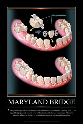 """MARYLAND BRIDGE"" - (black) Dental Wall Chart DWC131"