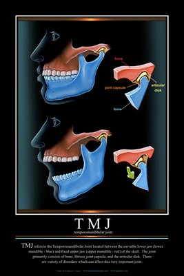 """TMJ"" - (black) Dental Wall Chart DWC211"