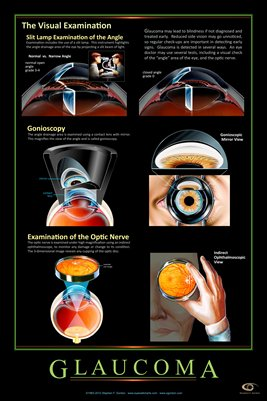 GLAUCOMA - THE VISUAL EXAMINATION Eye Wall Chart #310A