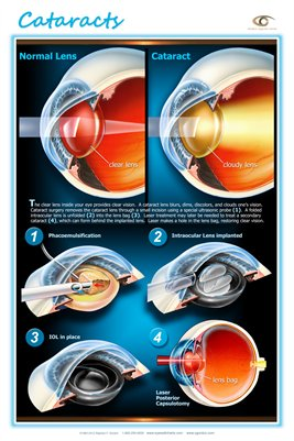 CATARACTS Wall Chart - Modern Eyecare Series