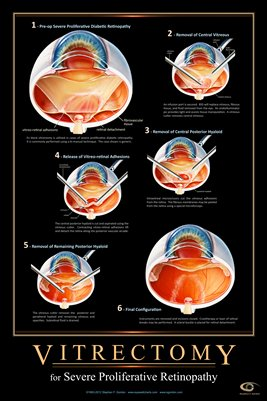VITRECTOMY FOR DIABETIC RETINOPATHY Eye Wall Chart #516B