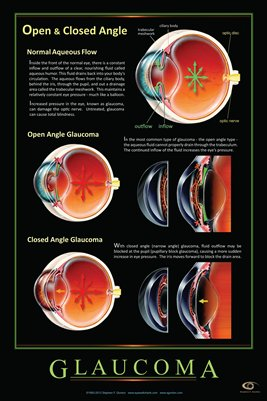 OPEN & CLOSED ANGLE GLAUCOMA Eye Wall Chart v.2 #304A