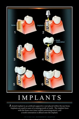 """IMPLANTS"" #3 - (black) Dental Wall Chart DWC125"