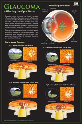 GLAUCOMA - AFFECTING THE OPTIC NERVE Eye Wall Chart v.2 #303